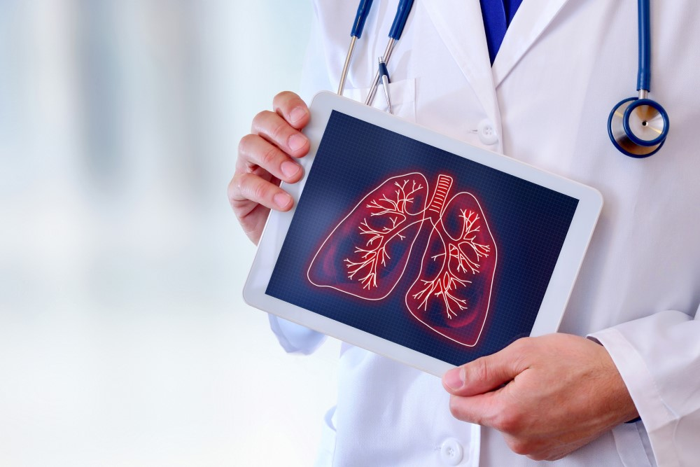 Nódulo Pulmonar