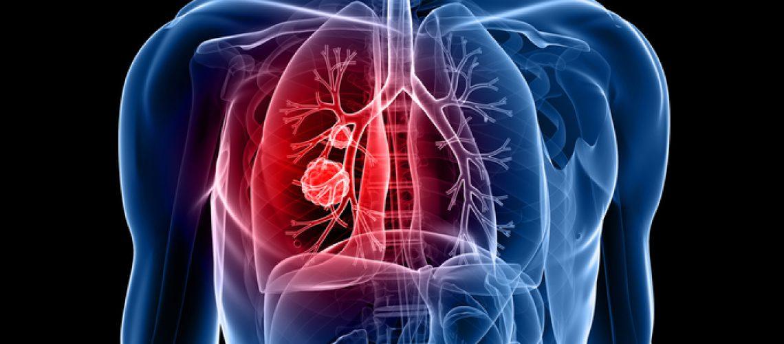 nódulo no pulmão